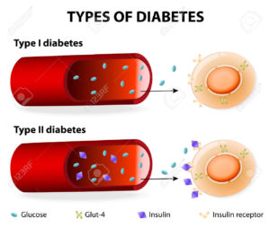 Le differenze tra diabete di tipo 1 e 2.