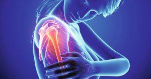 artrosi e artrite