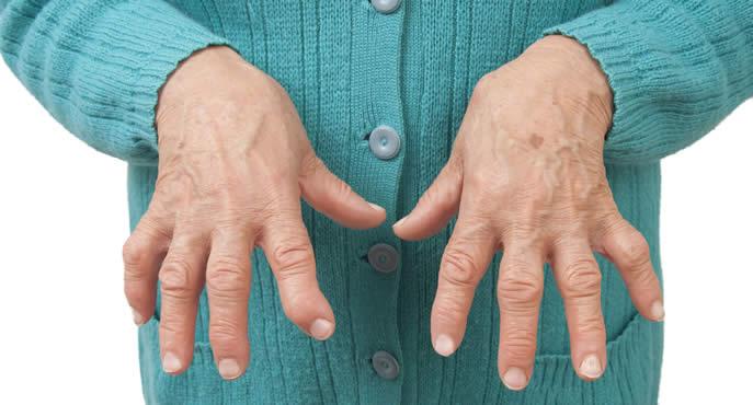 artrite reumatoide trattamenti