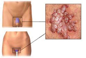 Papillomavirus cosa sapere