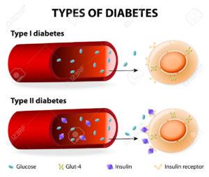 Le differenze tra diabete di tipo 1 e 2.